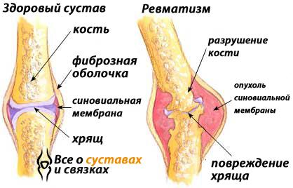 симптомы и лечение ревматизма в бедре)