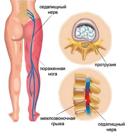 Лечение ишиаса - симптомы, профилактика, признаки, причины, как ...