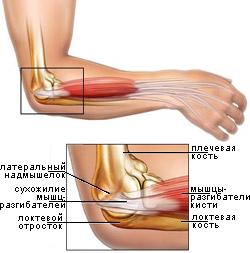 Сильно болит локоть при тендините синусит сустава тазобедренного