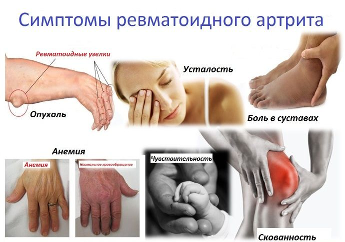 Лечение медными монетами артроз