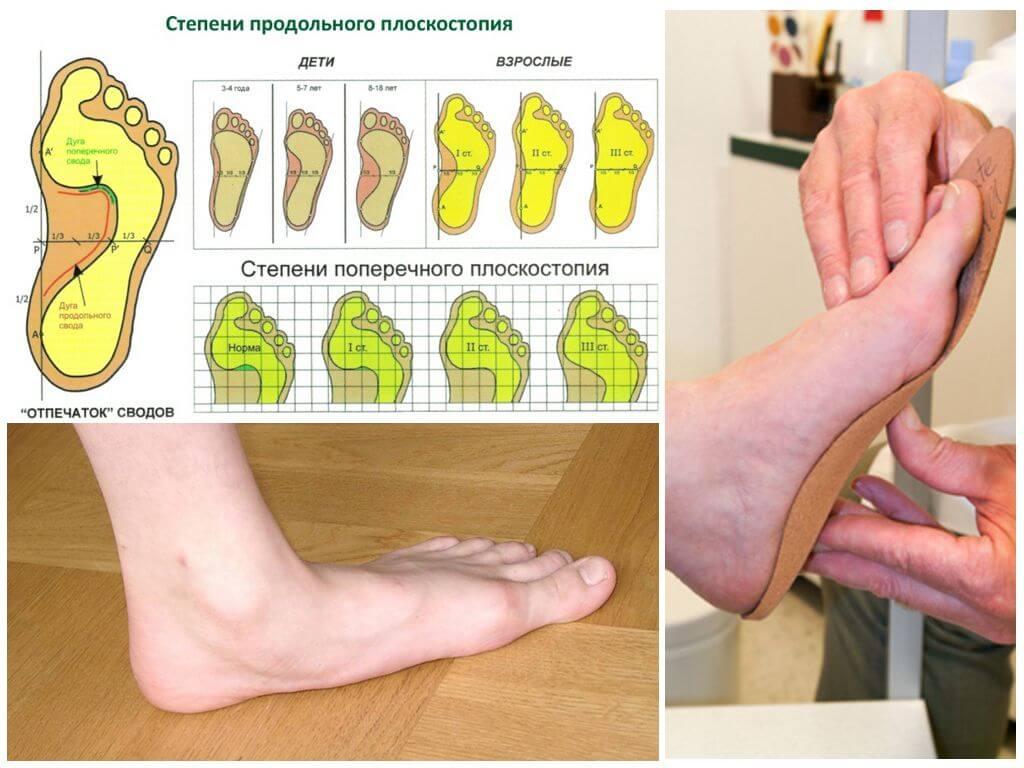 Упражнения при плоскостопии-голеностопный сустав искривился боль в груди, боль в суставах симптомы
